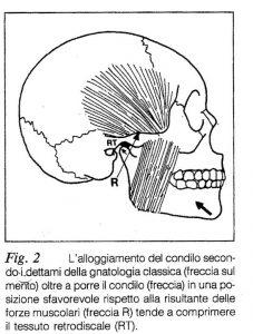 Alloggiamento del condilo secondo i dettami della gnatologia classica