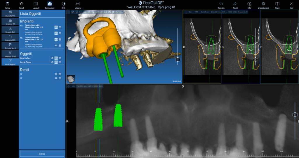La pianificazione digitale di due impianti con il grande rialzo del seno mascellare